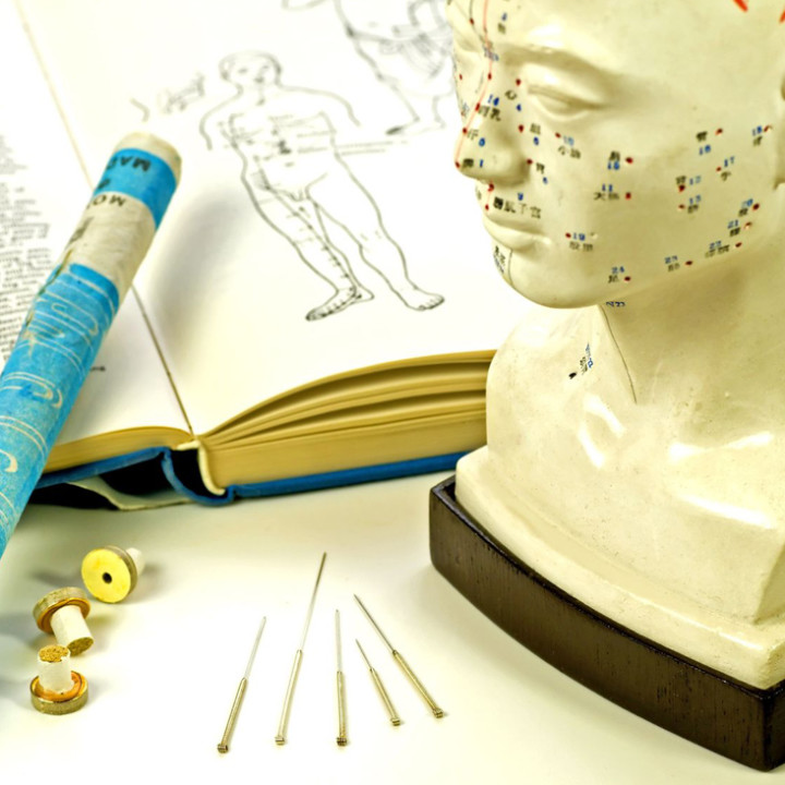 Integrative Medical Acupuncture