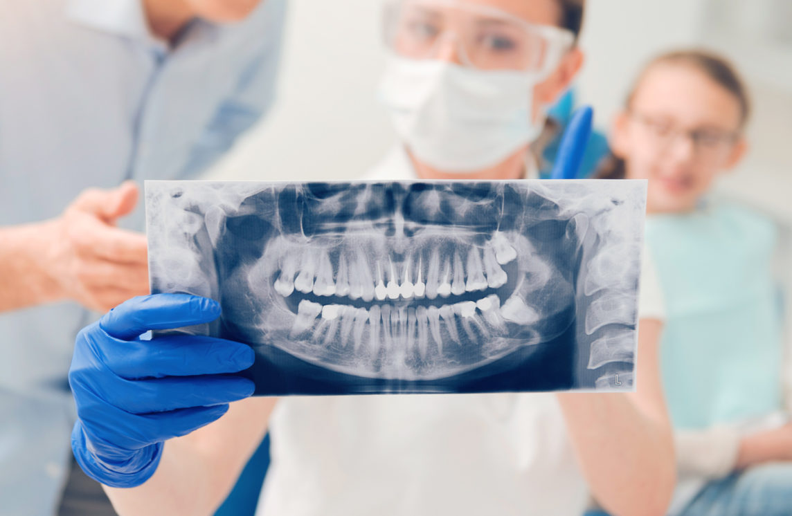 Low Radiation Dental X-rays Offered